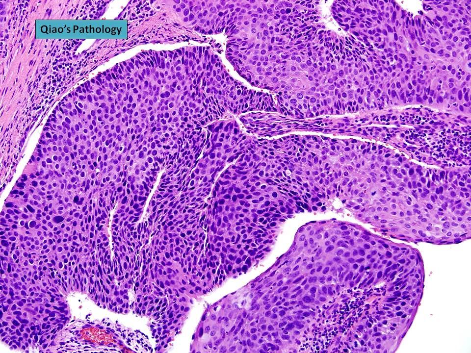 squamous papilloma with severe dysplasia