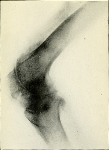 "Image from page 110 of ""The classification and treatment of diseases commonly known as rheumatism"" (1910) 