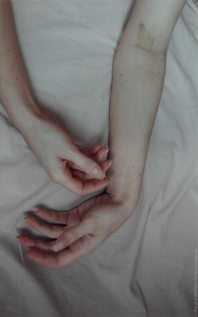 Hands-ten fingers disabled V