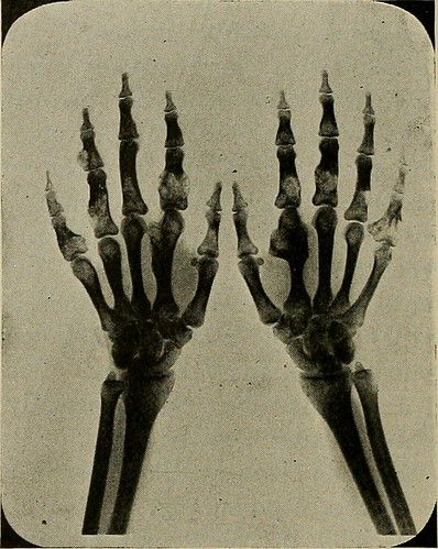 "Image from page 641 of ""Industrial medicine and surgery"" (1919) 