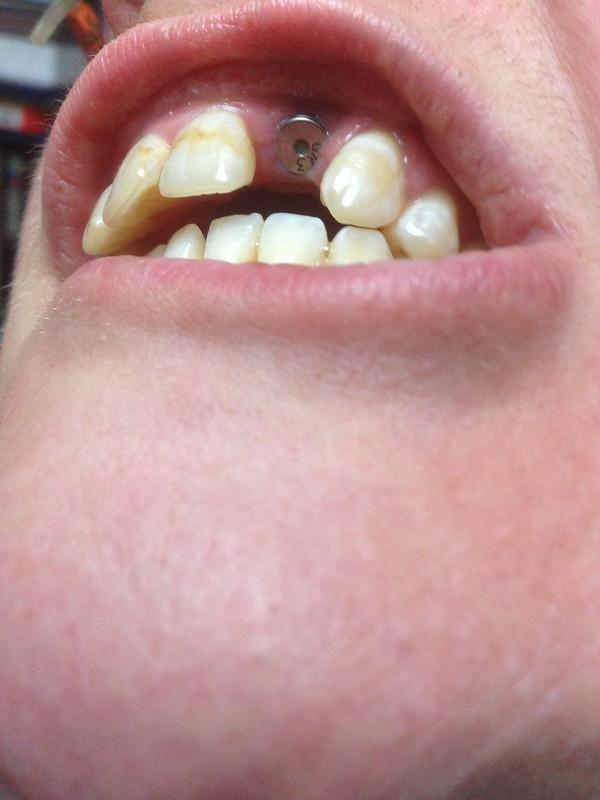Cyborg teeth