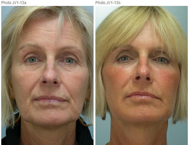 Juvederm - plastic surgery
