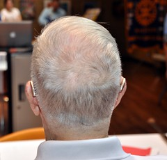 Whose head is this?