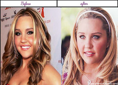 5 Photos Of Amanda Bynes After Before Plastic Surgery 2014