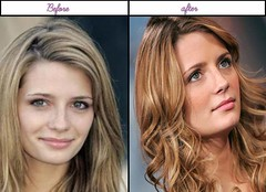 How Famous Actress Mischa Barton Been Through Plastic Surgery Her Following And Ahead Of Pictures