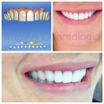 Projeto Digital do sorriso de nossa paciente, e o resultado final de um conjunto de coroas e facetas, executado com tecnologia Cad cam Cerec. #clinicaimplart #implantedentario #sorrisodeporcelana #sorriamais #bemestar #projetocerec #coroasemax #dayclinic