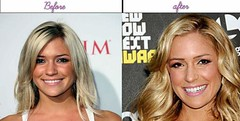 Beautiful Women Celebrities Kristin Cavallari After Possessing Plastic Surgery Authentic Pics