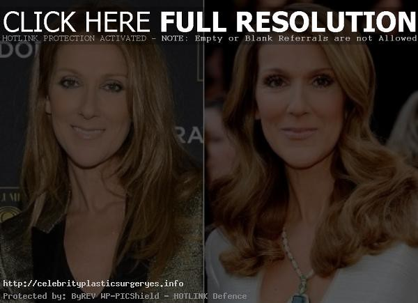 Celine Dion Plastic Surgery Before And After The Rumors Fu Flickr