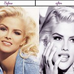 After Before Pictures Of Anna Nicole Smith When She Had Her Plastic Sugery In Latest Calendar Year