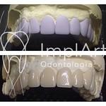 Iniciando a semana com projeto e elaboração de lentes de contato dentais em Cerec e eMax! #clinicaimplart #implantedentario #etapaemax #cerec #lentesdecontato ##implart #dayclinic #odontobrasil