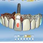 Projeto de lentes dentais e coroa sobre implante com o equipamento mais moderno da Odontologia, o sistema CAD CAM Cerec #implart #clinicaimplart #cerec #emax #dayclinic #dental #dentist #odonto #lentesdecontatodental