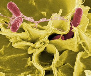 Salmonella | by National Institutes of Health (NIH)
