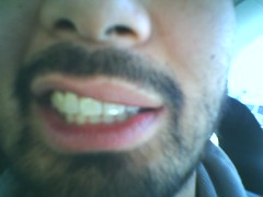 Novo-smile