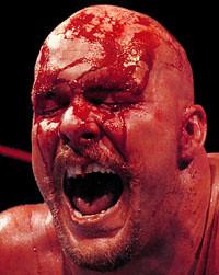 Steve_Austin_-_sangre_11