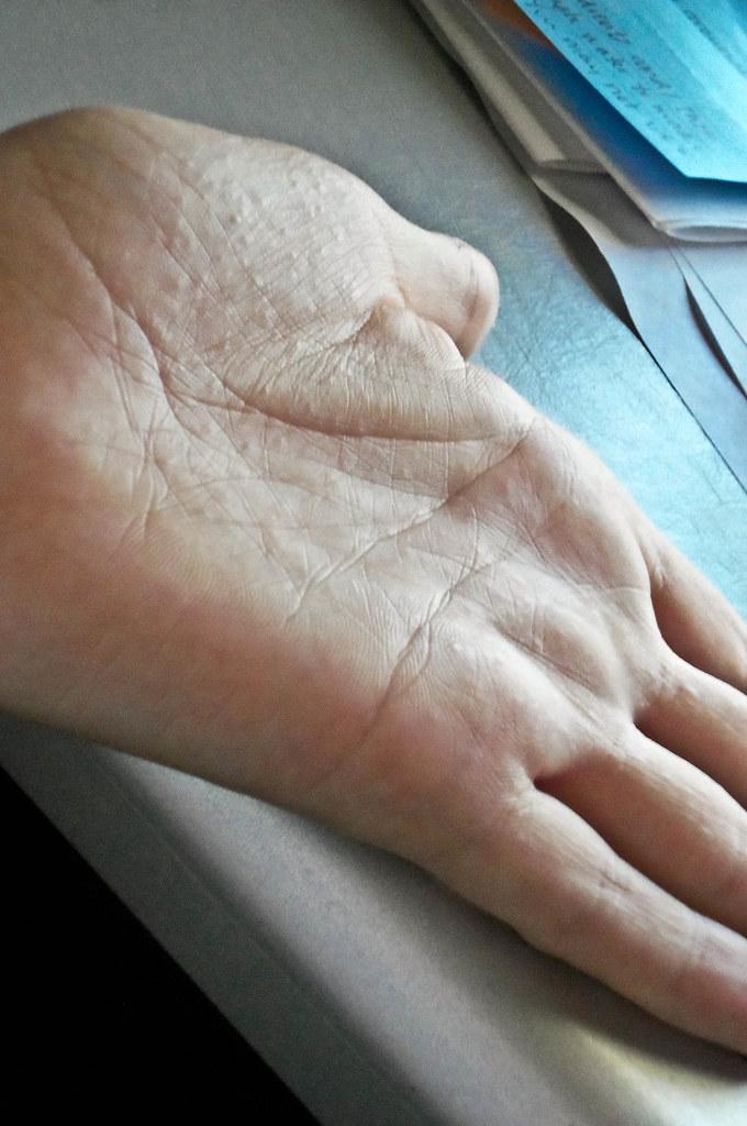 Dyshidrotic Eczema | sooooo, when it rains it pours, right