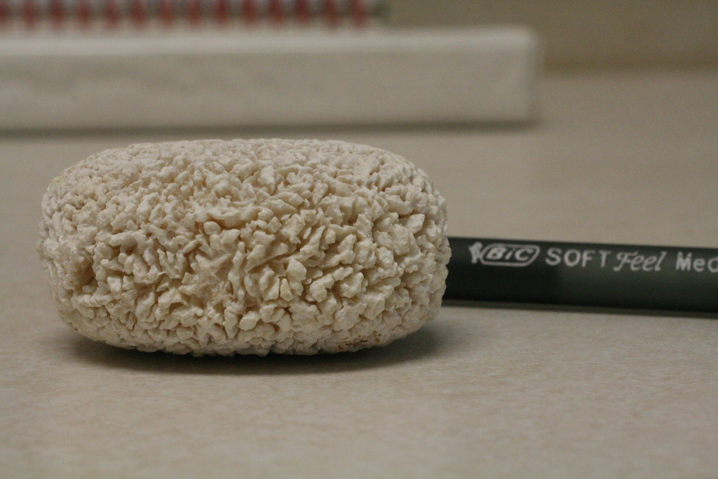 This Is The Largest Bladder Stone We've
