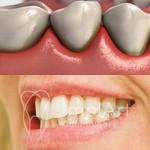 Fique atento a gengivas sangrando, dentes com mobilidade, e retração gengival - podem ser sinais de doença gengival e periodontal. Em caso de dúvidas, entre em contato. ☎️ (011) 3262-4750 ou pelo WhatsApp (011) 99598-1866 #implart #dentistry #gengiva #odo