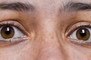 Image result for laser surgery skin