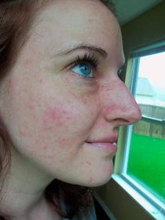 Petichiae update. 6 months postpartum after 2 photofacials (one was yesterday) | by mooshinindy