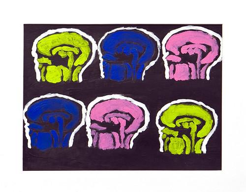 """""""Neon Brain X-rays"""""""