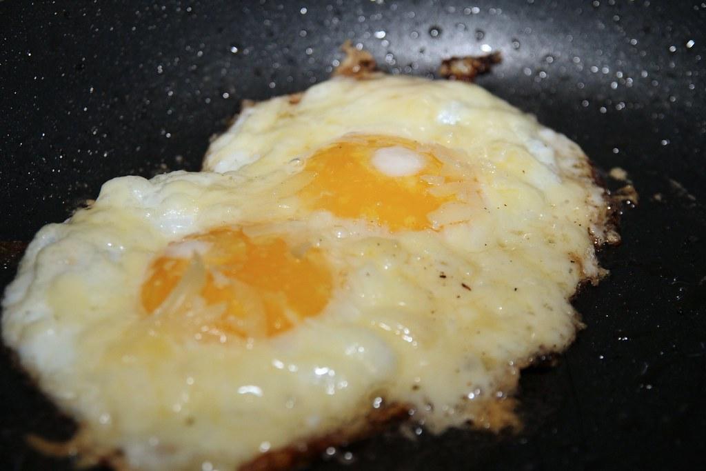 Cholesterol w miażdżycy