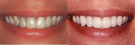 Before After 2 | by Dr. Alper, DMD, Cosmetic Dentist