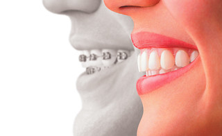 gowireless | by Dr. Alper, DMD, Cosmetic Dentist