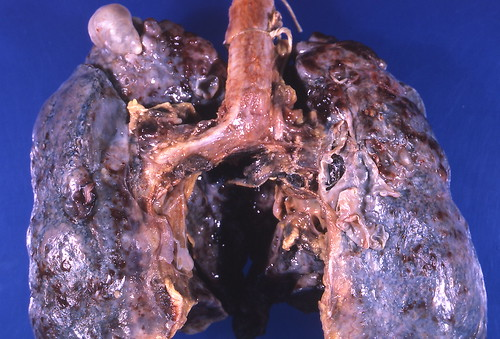 Sarcoidosis - Bullous emphysema | by Pulmonary Pathology