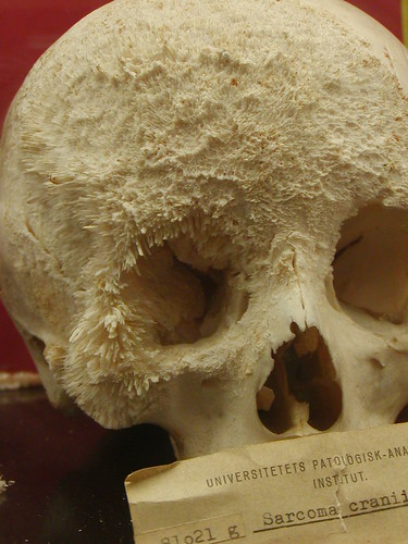 Bone Pathology | by medicalmuseion