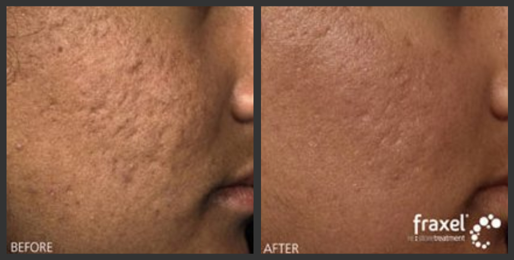 Fraxel Before After Acne Scar Laser Removal Www Aboutfa Flickr