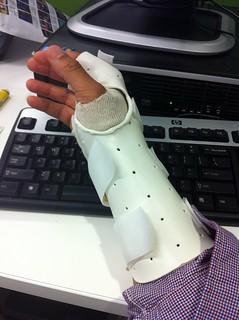 Removable splint | by derek7272