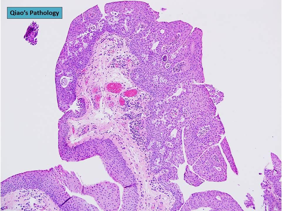 Conjunctiva papilloma pathology. Conjunctiva papilloma pathology