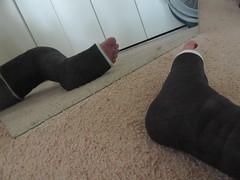 Leg Cast