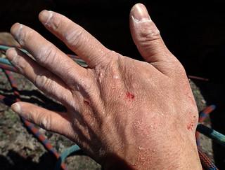 Wrecked hand | by Masa Sakano