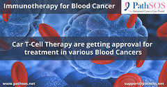 Immunotherapy for Blood Cancer