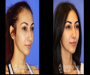 Ethnic Rhinoplasty Los Angeles, Los Angeles Ethnic Rhinoplasty, african american rhinoplasty los angeles, best nose surgery professional doctor