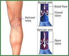 Home Remedy for Varicose Veins and Thrombosis with Only 2 Simple Ingredients