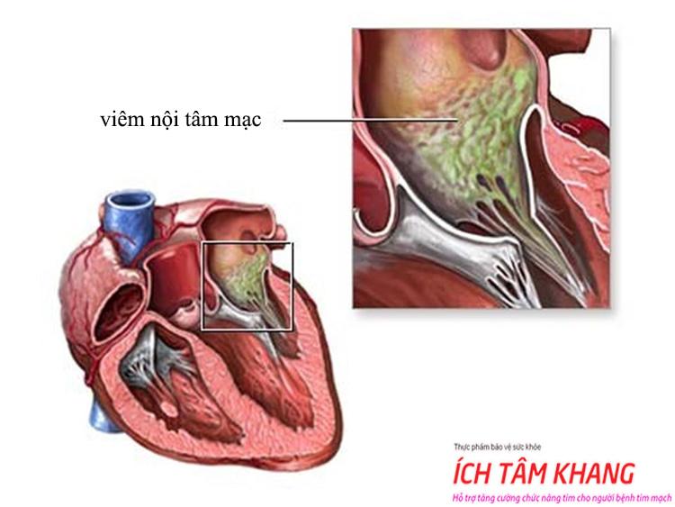 Van tim bị viêm nội tâm mạc sẽ rất nguy hiểm