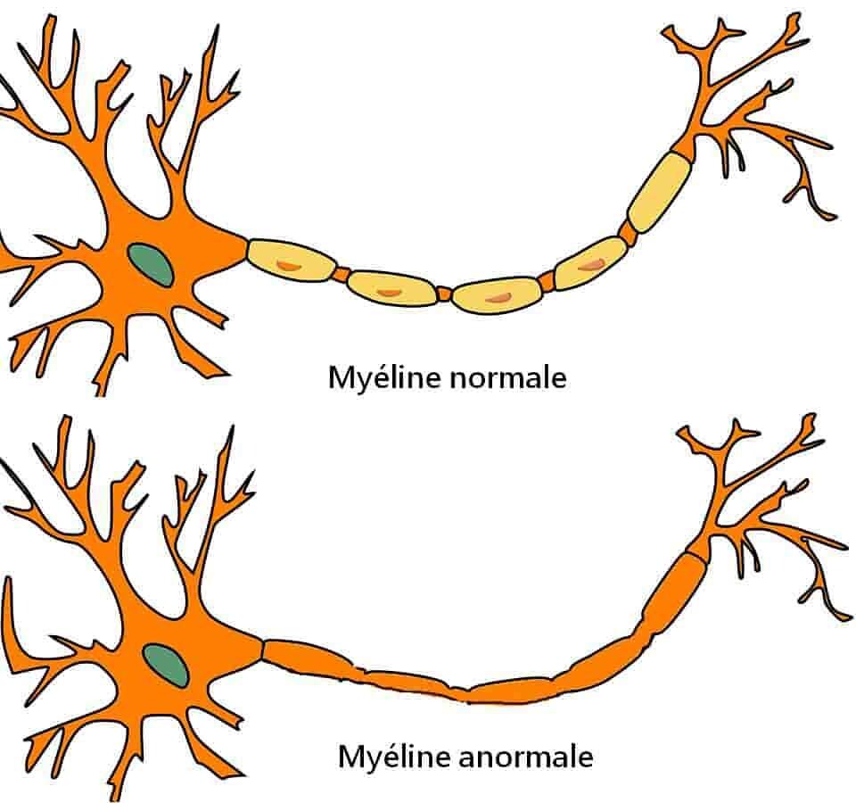 neurones-myéline-normale-et-anormale