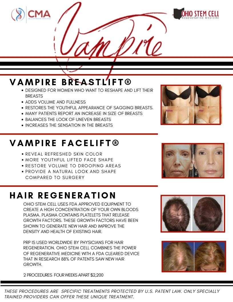 Vampire Facelift | Ohio Stem Cell