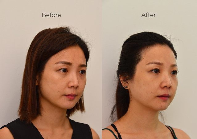 Halley Medical Aesthetics-PicoSure_Yuki_Right view