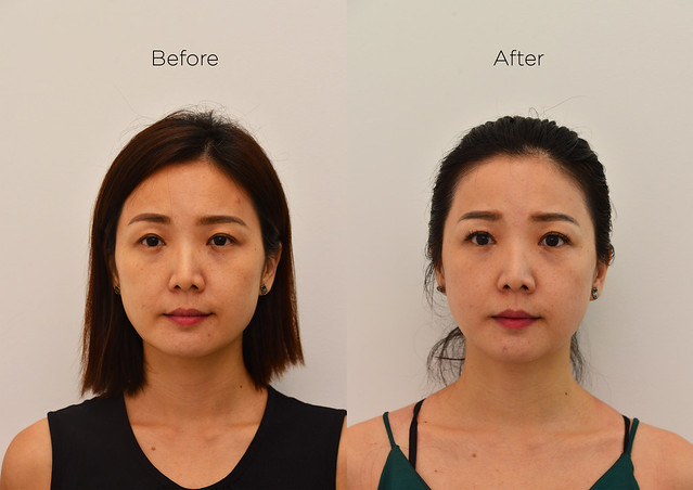 Halley Medical Aesthetics-PicoSure_Yuki_Front view