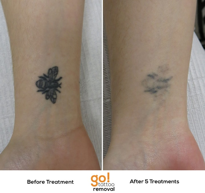 Laser Tattoo Removal Progress Photos   Allentown, PA   GO! Tattoo ...