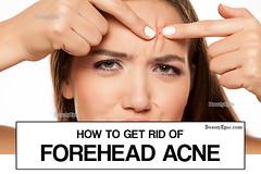 Forehead-Acne
