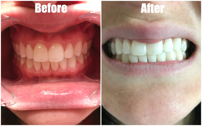 Fake Vs Real  Clear Aligners