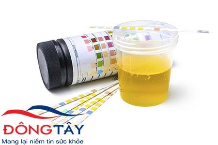 Nước tiểu sủi bọt như bia là dấu hiệu sớm của bệnh thận đái tháo đường.
