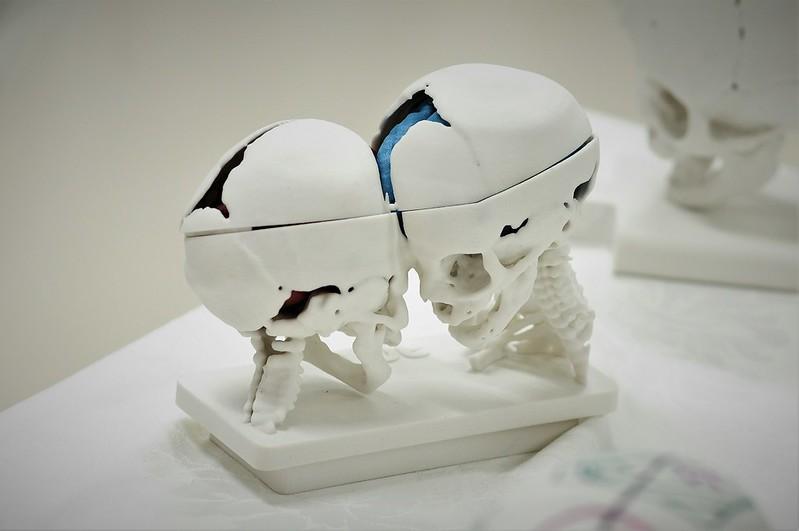 Coletiva cirurgia de separação de siamesas no Hospital da Criança