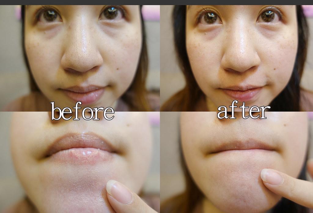 belif 草莓鼻掰掰淨膚刷具組 (27)