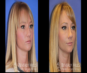 revision rhinoplasty los angeles, revision rhinoplasty los angeles, nose job, dr.