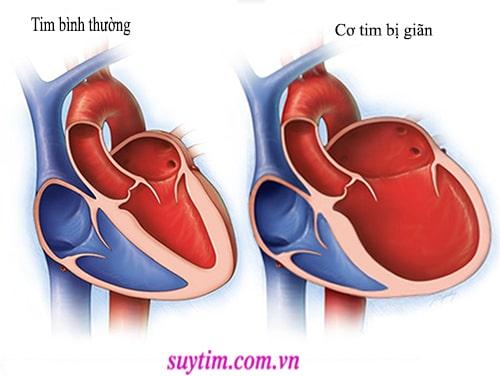 Các bệnh gây ra cơ tim giãn cũng là căn nguyên gây ra bệnh hở van tim